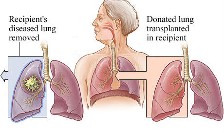expensive procedure of lung transplant